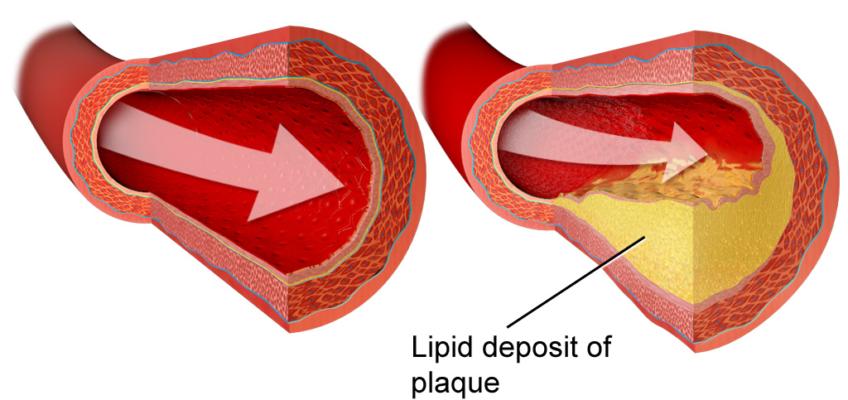 Depósito de lípidos en venas y arterias